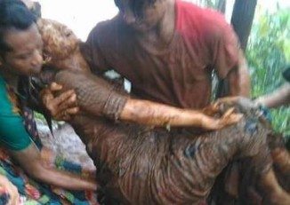 A women is pulled from the mudslide in Mawchi on Sunday, 11 October 2015. (PHOTO supplied to DVB)