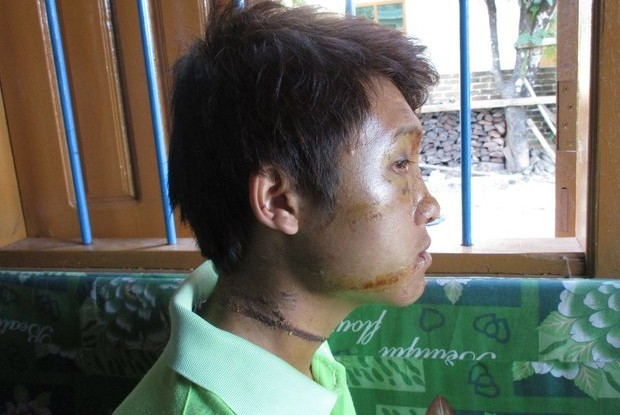 Sai Yee Lin, 23, after the incident. (PHOTO:  Civilian Protection Monitoring Group)