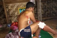 Win Soe, 38, shows the injuries he incurred when he stepped on a landmine in Hpakant Township on 13 September 2016. (PHOTO supplied to DVB by La N'lung Jung)