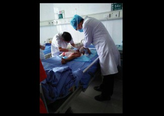 A Muse child is treated for shrapnel wounds at a hospital in China. (PHOTO: supplied to DVB)