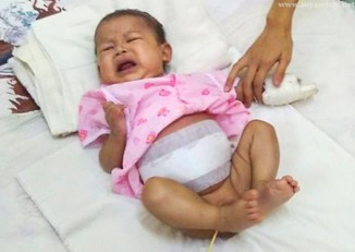 The three-month-old baby seen post-surgery. (Photo: Myawady News)