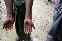 A man, who said he was arrested by the Burmese Army and then released, shows scars on his hands at a Rohingya village outside Maungdaw in Arakan State on 27 October 2016. (Photo: Reuters)