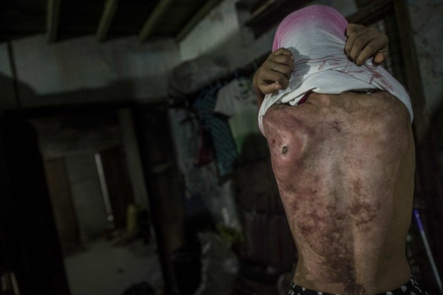 This photo taken on February 13, 2017 shows 14-year old Khin Khin Tun with deep scars on her back in Moulmein, some 300 kms southeast of Rangoon. (PHOTO: AFP)